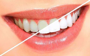 Šetrné bělení zubů bez peroxidu se slevou 82 %