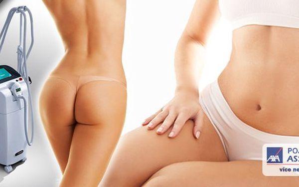 Revoluční liposukce TrioLipo! Ošetření, které odstraní i hlouběji uložené tuky a celulitidu, které běžná neinvazivní liposukce neodstraní