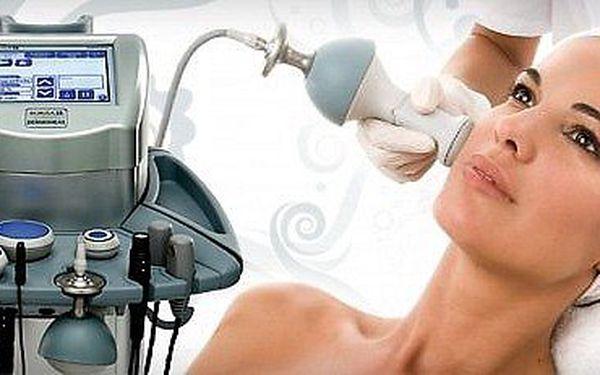Radiofrekvenční lifting, zpevnění a omlazení obličeje. Zredukování vrásek viditelné již po prvním ošetření