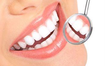 Bělení zubů bez peroxidu za pouhých 329 Kč!