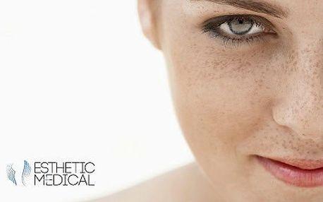 Lékařské laserové odstranění pih, znamének či bradavic!
