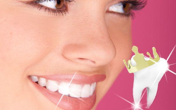 Bělení zubů profesionální metodou WHITEN LED v celkové délce ošetření 40 minut