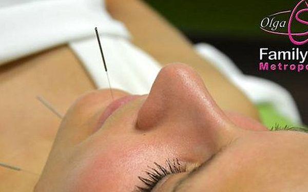 Kosmetická akupunktura pro boj proti vráskám