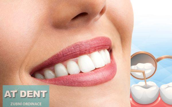 Ordinační bělení zubů od 2690 Kč!
