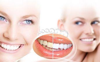 Bezperoxidové BĚLĚNÍ ZUBŮ jen za 559 Kč! Krásné bíle zoubky omladí Váš celkový vzhled a zvednou Vám sebevědomí! Mějte krásný a zářivý úsměv se slevou 78%! Ke každému voucheru navíc 20% sleva na mineralizaci zubů!