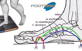 Vyšetření, které je vhodné pro každého - analýza chodidla! Slouží pro určení vhodných ortopedických vložek do bot a k výběru nejvhodnější obuvi k různým aktivitám.
