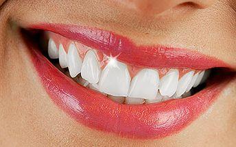 Bělení zubů bez peroxidu - reprezentující a krásné zuby za pouhých 399 kč.