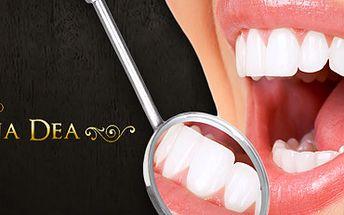Viditelné bezpečné bělení zubů speciálním gelem bez peroxidu (2x 20 minut)