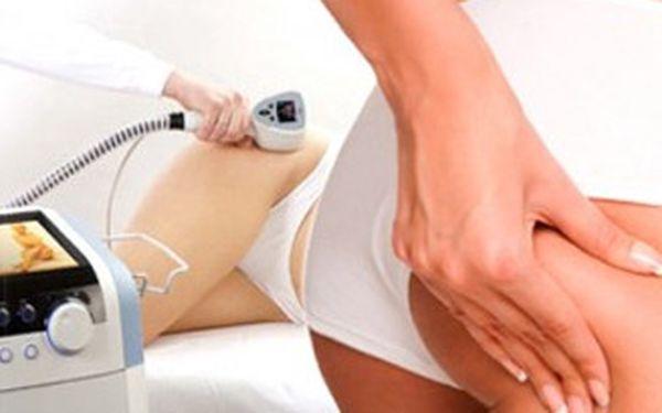 Bezbolestná liposukce 2 partií dle vašeho výběru, Magic Wrap zábal a anticelulitidní lymfatická masáž.