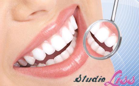 Neperoxidové bělení zubů za 549 Kč!