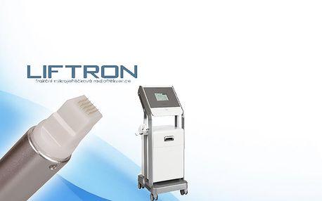 Mikrojehličková frakční radiofrekvence Liftron – unikátní ošetření vrásek, strií a jizev