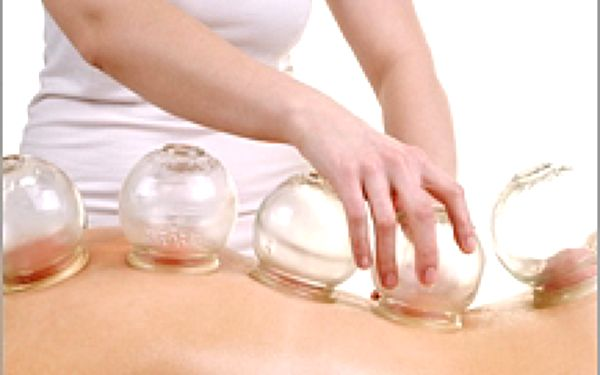 Baňkování - masáž zad