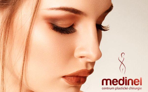 Plastická operace očních víček – rezervujte nyní, ušetříte 4 001 Kč!