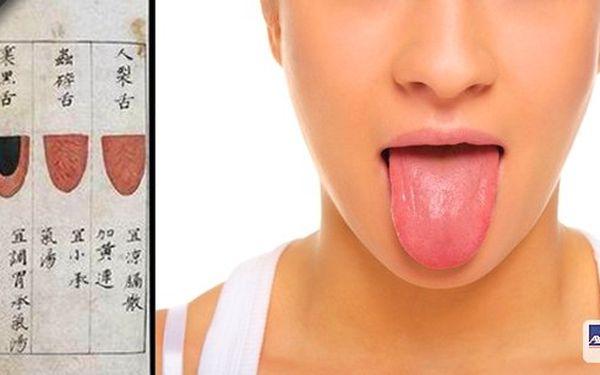 Orientální diagnostika z jazyka je vynikajícím prvkem, jak odhalit přicházející nemoci. Jazyk totiž poví zkušenému terapeutovi mnohem více než jiné části těla, kdo se na něj podívá, tak vidí jakousi orgánovou mapu, jenž vypovídá mnohé o těle.
