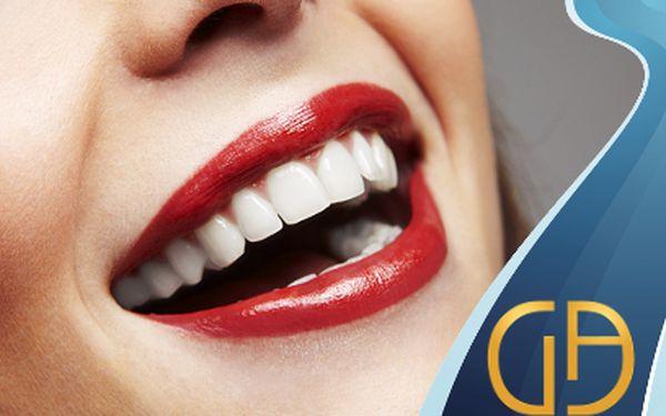 Dentální hygiena sprohlídkou za 650 Kč!