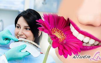 Bezperoxidové BĚLENÍ ZUBŮ speciálním gelem Star White za fantastických 549 Kč! Šetrná a bezpečná metoda pro krásný zářivý usměv, který celkově vylepší Vaši image! Dopřejte si ten skvělý pocit a ušetřete 66% z původní ceny!