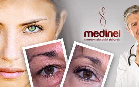 Odstranění povislých očních víček: operace od kvalitního plastického chirurga!