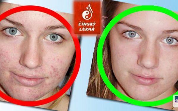 Stop akné – zbavte se otravných pupínků na dobro - vyšetření v centru Prahy zaměřené na odhalení příčin vzniku akné - 60 minut. Nebojte se ukázat svou tvář.