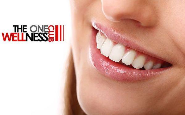 Profesionální bělení zubů na 40 minut metodou bez peroxidu v Praze