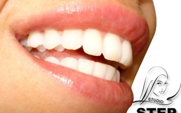 Profesionální BEZPEROXIDOVÉ BĚLENÍ zubů až o 6 odstínů a ihned viditelný výsledek! Oblíbené profesionální studio STEP v samém centru Prahy u stanice metra Můstek!!!