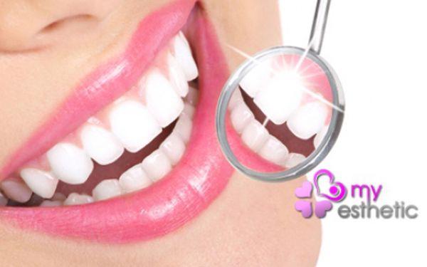 BĚLENÍ ZUBŮ BEZ PEROXIDU za fantasticky nízkou cenu! Profesionální a vyhledávané studio My Esthetic Nové Butovice! Bezpečné a efektivní bělení zubů pro krásný zářivý úsměv rychle a bez námahy!