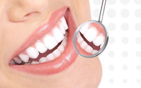 Kvalitní bělení zubů laserem z USA Praha 1 a Praha 6