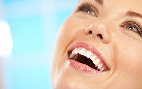 Neperoxidové bělení zubů Hollywood