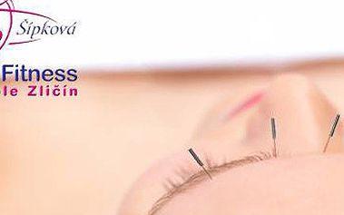 Kosmetická akupunktura ve Fitness Olgy Šípkové - omlazení a odstranění vrásek přírodní cestou spojené s relaxací a odpočinkem