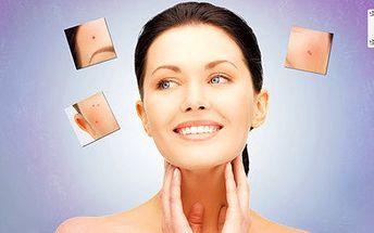 Odstranění akné na obličeji i dekoltu