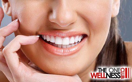 2x šetrné bělení zubů metodou bez peroxidu v Praze v salonu The One Wellness