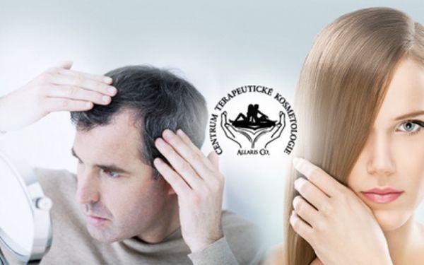 MEZOTERAPIE vlasů již za 599 Kč/Praha 7! Jedinečná léčba vypadávání vlasů je TADY! Procedura za pomoci jediného přístroje v ČR Pistor 5 napomáhá obnovení vlasového kořínku, který také vyživuje! Úžasná sleva 73%!