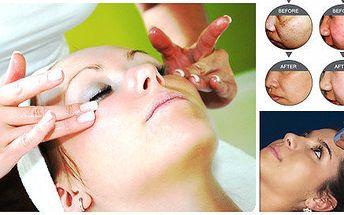 Odstranění vrásek, akné i pigmentových skvrn
