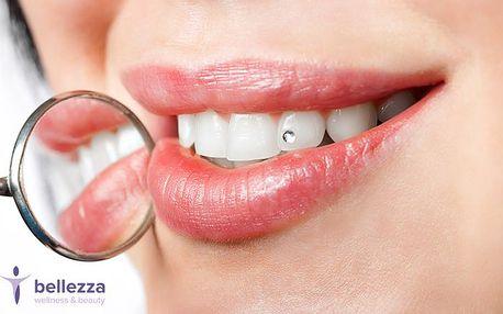 Aplikace dentálního šperku v brněnském salonu Bellezza wellness