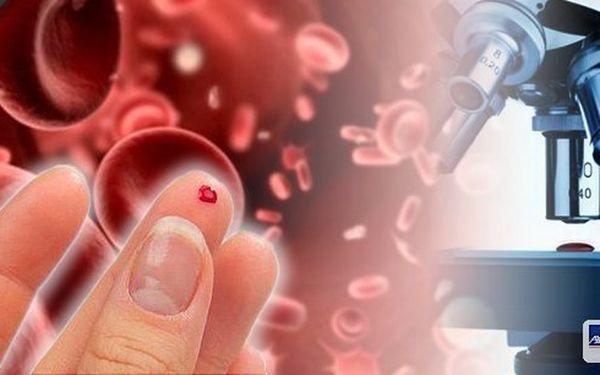 Mikroskopické vyšetření kapky krve - včas odhalí zdravotní problém!Včetně bioimpedančního měření a nutričního poradenství! Perfektní umístění v centru Prahy! Komplexní zjištění obrazu o vašem momentálním zdravotním stavu z kapky krve!