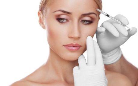 Mikroinjekční aplikace kyseliny hyaluronové se slevou 67 %