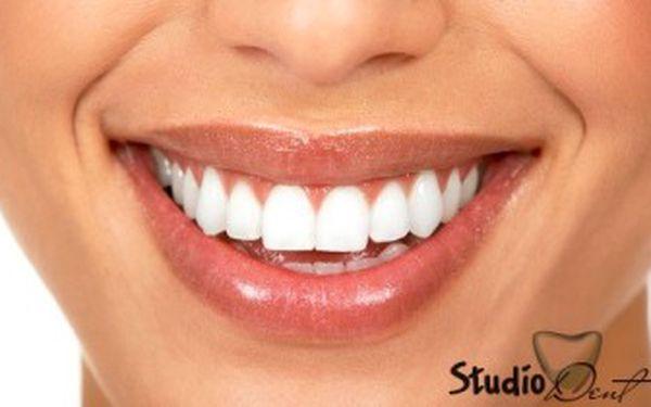 DENTÁLNÍ HYGIENA - profi péče na nejvyšší úrovni. Čištění chrupu včetně AIR-FLOW – leštění zubů.