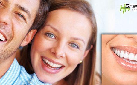 Profesionální neperoxidové bělení zubů pro krásný bílý úsměv