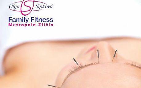 30minutová omlazující kosmetická akupunktura