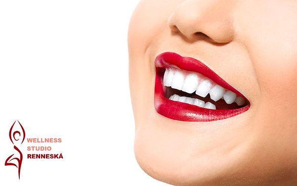30minutové bělení zubů neperoxidovým gelem v brněnském Wellness Studiu Renneská