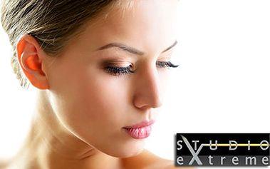 THERMAGE EYES: lifting očních víček a vrásek v očním okolí
