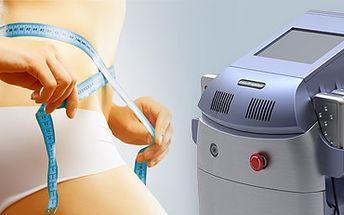 Laserová lipolýza přístrojem GeLipo, analýza těla a vibrační plošina!