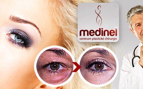 Odstranění povislých očních víček: operace od uznávaného plastického chirurga!