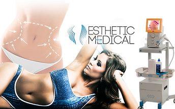 LYMFODRENÁŽ, RÁZOVÁ VLNA + NEINVAZIVNÍ LIPOSUKCE! Esthetic Medical ví jak na krásnou postavu!