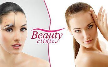 Odstranění akné na obličeji včetně kafrové masky v Beauty Clinic