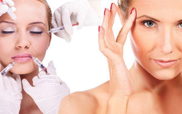 Botox - korekce mimických vrásek
