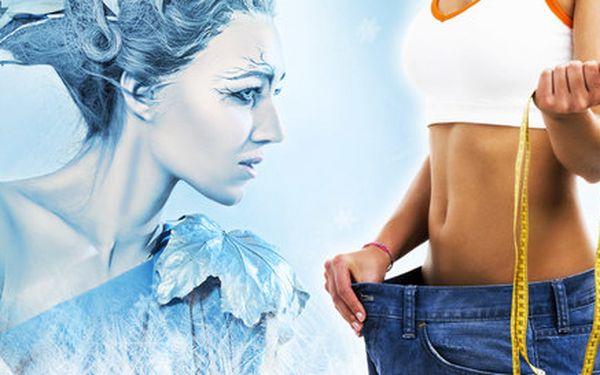 Kryolipolýza s garancí úbytku minimálně 25 % tuku!