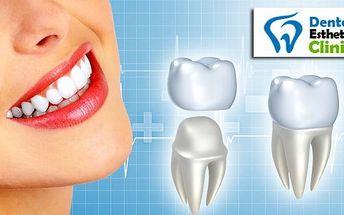 Metalokeramická korunka na zub včetně laboratoře s 50% slevou!