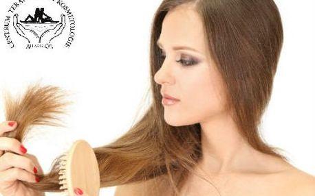 Mezoterapie vlasové pokožky pro zastavení vypadávání vlasů!