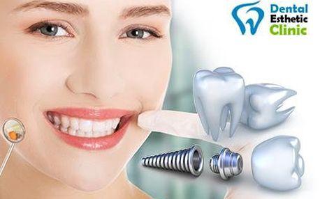 Dental Esthetic Clinic: Zubní implantát Dentis s korunkou
