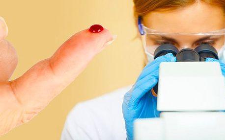 Analýza kapičky krve v temném poli mikroskopu! Získejte komplexní rozbor Vašeho zdraví! Okamžitě uvidíte aktuální stav krve a organismu, včetně návrhu přírodní léčby vašich případných problémů - to vše nyní s neuvěřitelnou slevou!